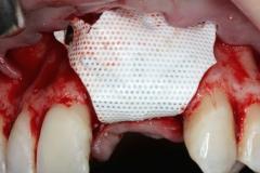 non-resorb-membrane