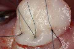 1_Socket_Seal_copia_w640