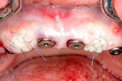 2_boosted_biotype_w640