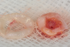 c_de_epithalized_w640